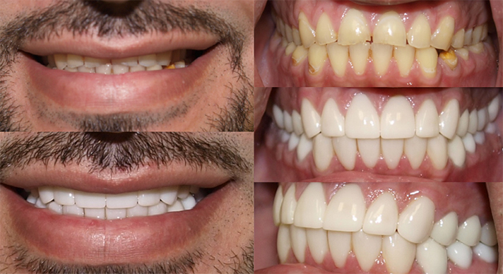 Dentist Waukesha WI Hillcrest Family Smile Gallery Before And After