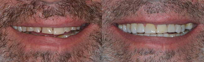 Dentist Waukesha WI Patient Success Stories